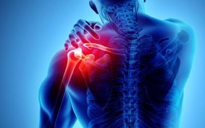 Musculo Skeletal Medicine