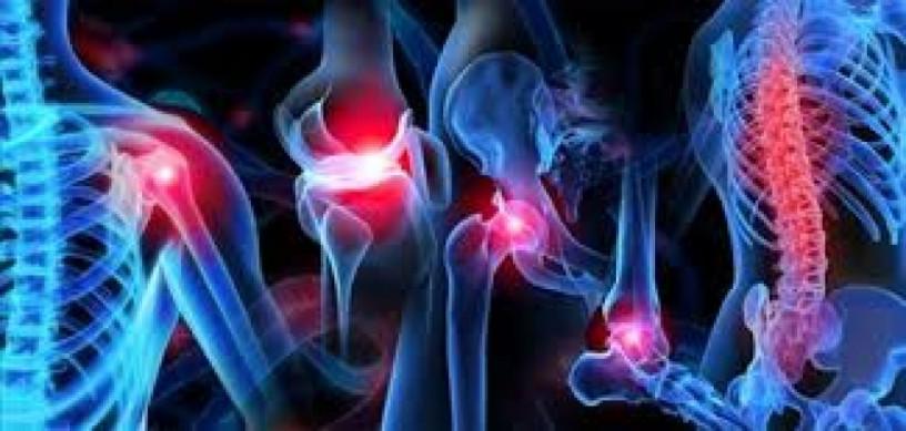 Orthopedic Medicines Franchise PCD Company 1