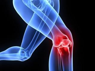 Orthopedics Franchise